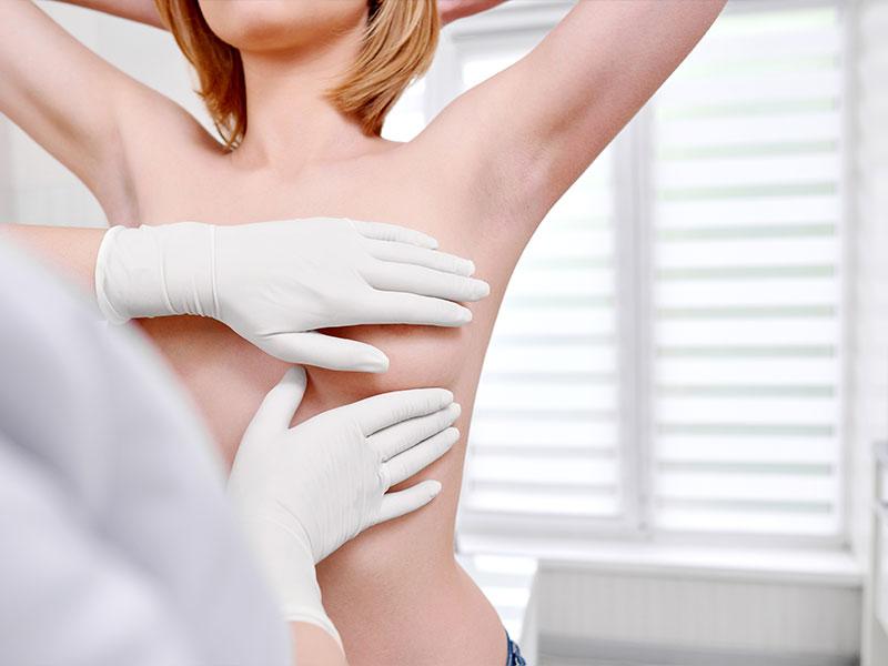 Quali sono i benefici e quando ricorrere alla Ricostruzione mammaria