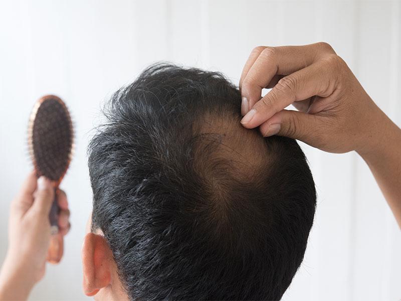 Caduta dei capelli in autunno: cause e rimedi
